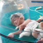 Doctors said that the baby girl was likely to have been born prematurely